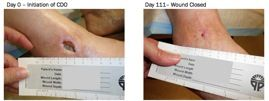 Non-healing surgical wound, open for more than 455 days. Full closure achieved by CDO Therapy in 111 days.