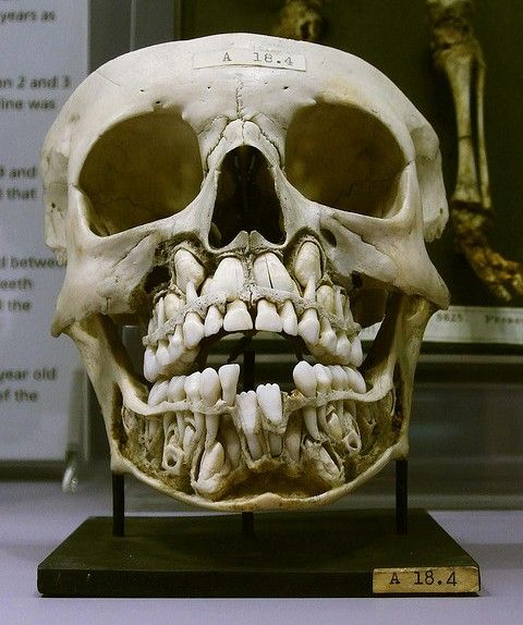 What a child's skull looks like before they lose their baby teeth.