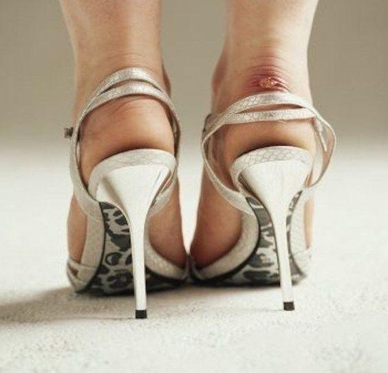 Orrore vesciche ai piedi? I rimedi imperdibili per un'estate senza dolori!   ClioMakeUp Blog   Bloglovin'