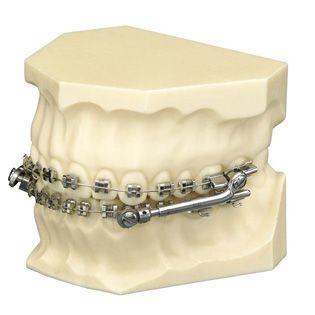 http://www.qboca.com/ortodoncia-en-pozuelo