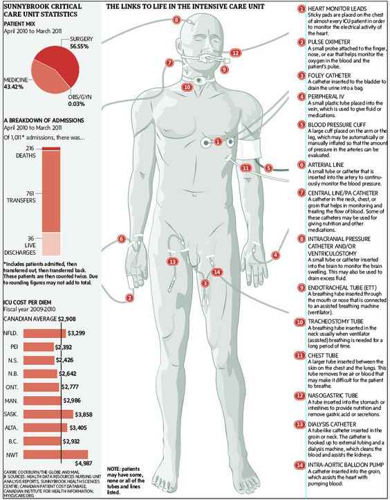 The links to life in an intensive care unit.  A Globe and Mail graphic