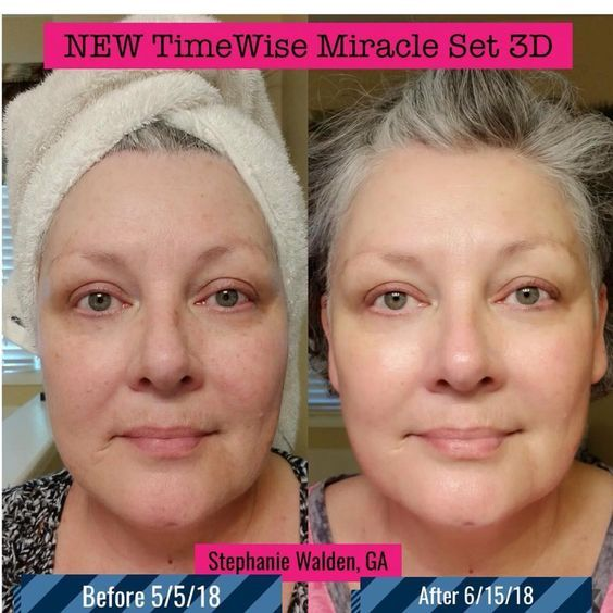 My Stephanie Walden Ga Before After Using 3d No Lie It Works