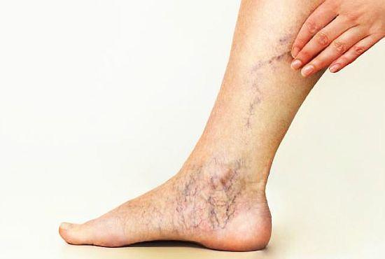 varicoză pulsare în picior