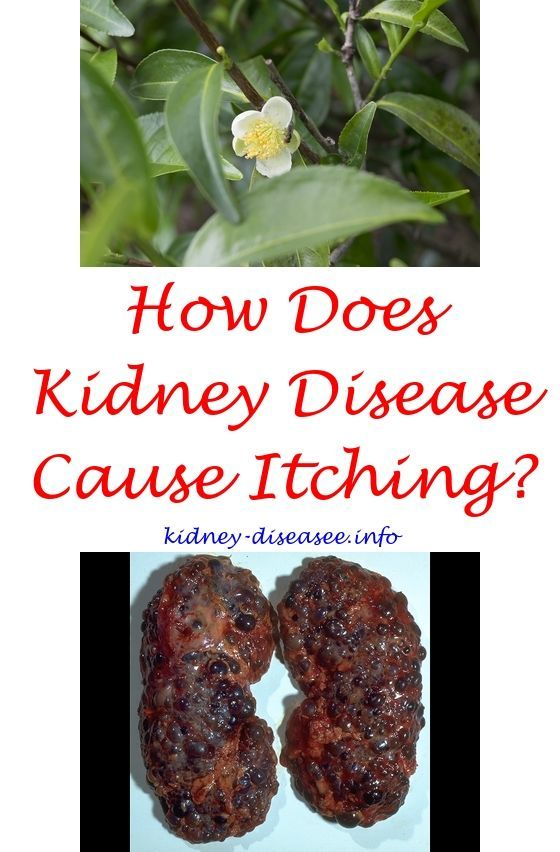 Signs Of Renal Failure In Adults Post Kidney Transplant Bowel Cleanse 6919034099 Chronic Kidney Disease Recipes Kidney Disease Awareness Kidney Disease Diet