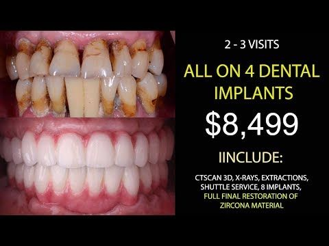 All On 4 Dental Implants Cost Youtube Dental Implants Cost Dental Implants Teeth Implants