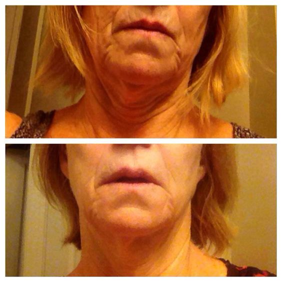 These are real results from using Refefine + Macro E (and the AMP MD roller). Darlene is experiencing less wrinkles and lines, better texture, firmness, smooth skin and smaller pore benefits with Rodan + Fields! Way to go!   https://amores.myrandf.com/Shop/Product/AARRME1