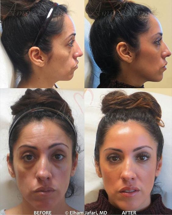 Half-an-hour non-surgical face-lift and face rejuvenation. Restoration of volume loss in the cheeks with Voluma and puffiness under the eyes with Restylane, treatment of wrinkles on forehead with Botox. All injected by experienced MD. Total treatment cost: $2500-$4000 Procedure length: 30-60 min Pain and discomfort: None to minimal Down-time: None Results typically last upto 2 years for fillers and upto 6 months for Botox Call us at 949-266-7346 to schedule complimentary consultation…