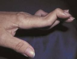 arthritic finger