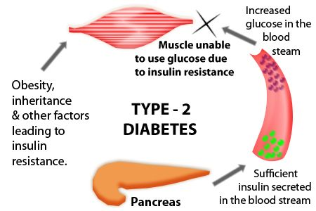 Type 2 Diabetes Causes What Causes Type 2 Diabetes Types Of
