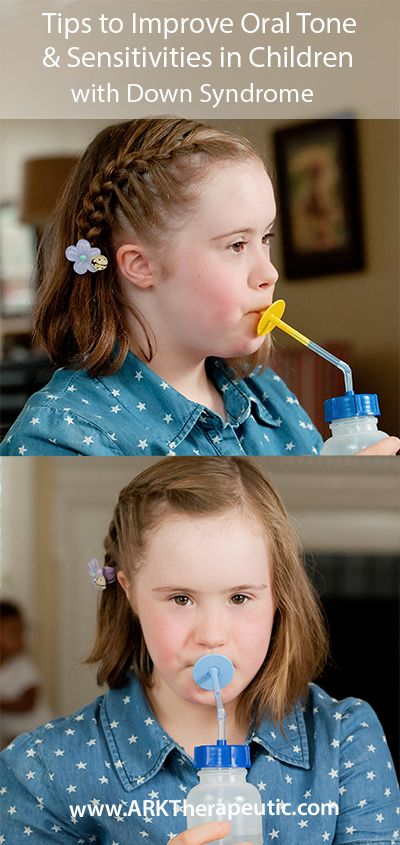 Tips to Improve Oral Tone, Sensitivities, Tongue Protrusion, a Weak Suck, & more in Children with Down Syndrome.  Visit pinterest.com/arktherapeutic for more #oralmotor #feedingtherapy and #speechtherapy resources