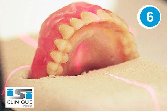Technique informatique pour pose d'implants dentaires sans douleur