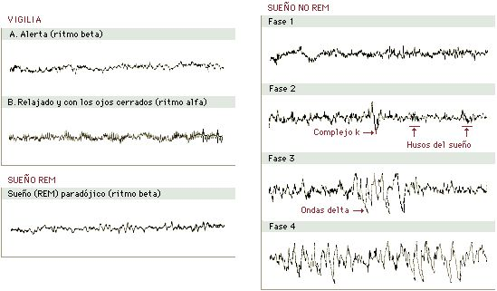 Actividad cerebral en el sueño.