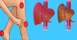Cuidado com seu fígado!!!  :)