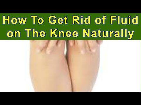 5615856cbc4c7bb25c35a5825a30b494 - How To Get Rid Of Swelling And Fluid In Knee