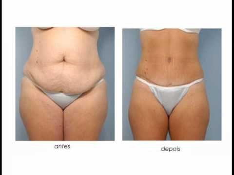 Abdominoplastia Cirurgia Abdominoplastia Estetica