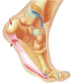 Cuando se tiene fibromialgia, una queja común es el dolor en los pies, generalmente en la planta. Se dice que la fm imita enfermedades y es cierto, nos dan dolores varios imitando a distintas dolen…