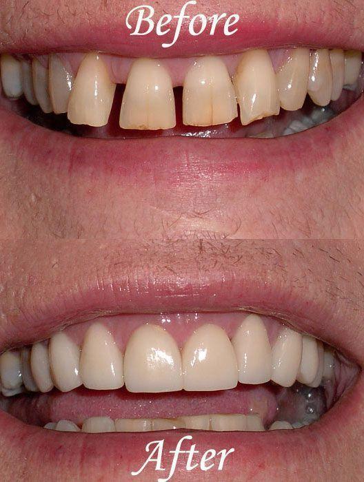 Angry Dental Care Heal Cavities Teethwhitening Dentalhygienisttshirts Dental Cosmetics Dental Cosmetic Dentistry Cosmetic Dentistry Cost