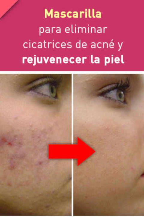 Mascarilla Para Eliminar Cicatrices De Acné Acne Skin Care Advices Anti Wrinkle Face Cream