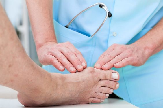 Лечение при подагре в период обострения | Здоровье. Рецепты ...