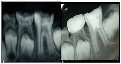 Application Of Nanobiomaterials In Endodontics By Kazemipoor