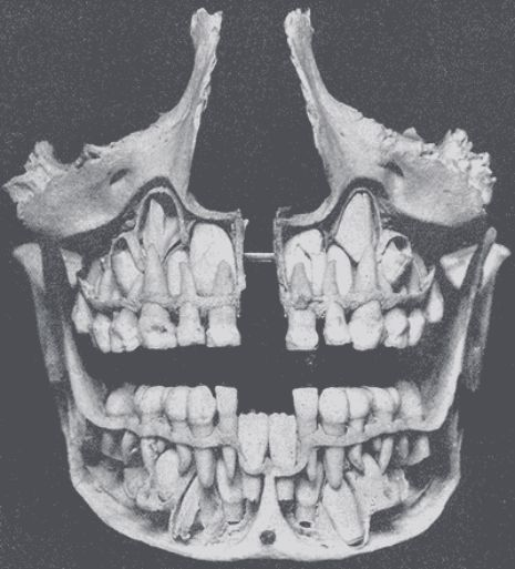 xray of front teeth - photo #37