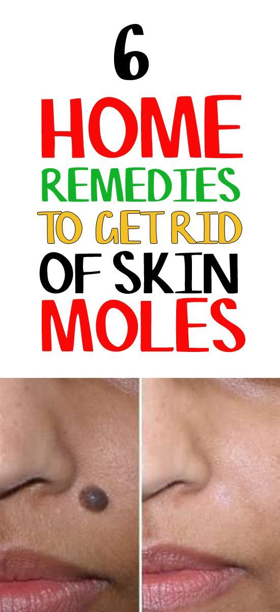 Like a nagging fly, solution to get rid of skin moles using home remedies hover around my head. Finally, I caught it!