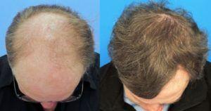 زراعة الشعر الطبيعي بالتفصيل للرجال والنساء لحل مشكلة الصلع