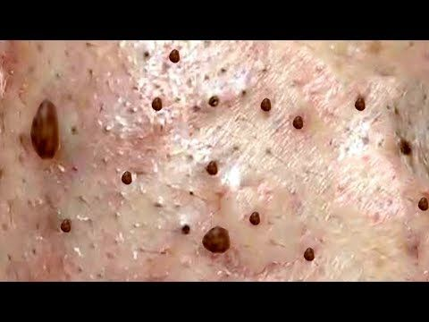 Dr Skincare Acne Blackheads Whiteheads Treatments Pimple Part 77 Full Screen Hd Youtube Clear Skin Fast Skin Care Face Skin Care Routine