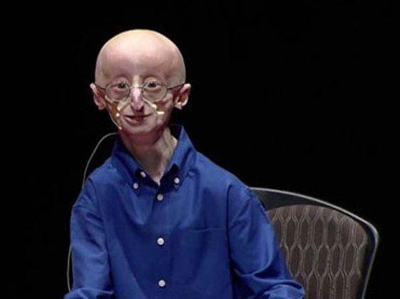 La Progeria, que le arrancó la vida a  Sam Berns, es una de las enfermedades más raras del mundo.