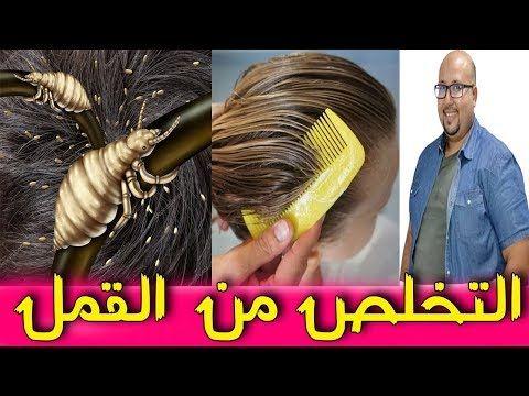 وصفة فعالة لتخلص من القمل والصيبانة Youtube Hair Styles Beauty Style