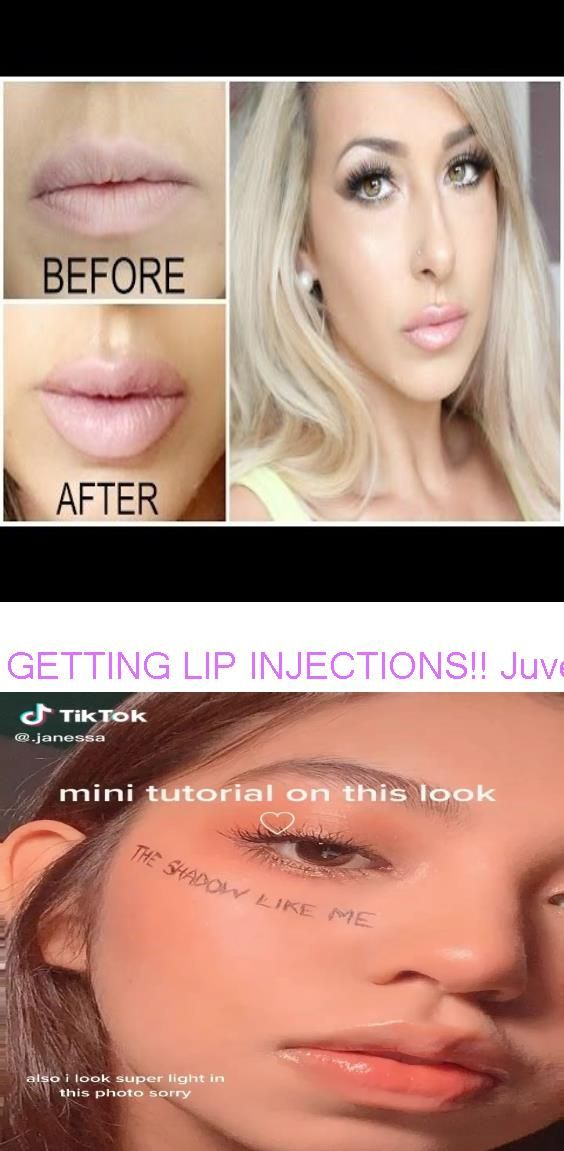 Getting Lip Injections Juvederm Lip Injections Before And After Bts Makeup Tutorial Lip Injections Juvederm Juvederm Lips Bts Makeup