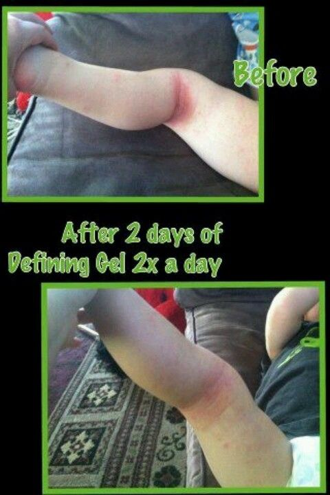 Eczema all natural solution miracle gel itworks for Defining skin tattoo