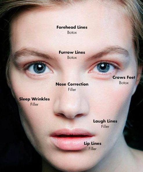 "We often get asked by our clients Botox vs. fillers: which one is better for you. The simple rule? Lines of expression need botulinum toxin (Botox). Lines at rest need filler. While Botox is a great choice for hitting those ""crease points"" where muscles contract, fillers are best for deep lines that are present even when facial muscles are not contracting."