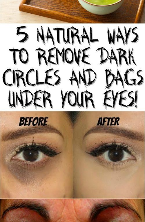5708f1cac0bb9cea519f5fa133de154d - How To Get Rid Of Bags Under Eyes Naturally Fast