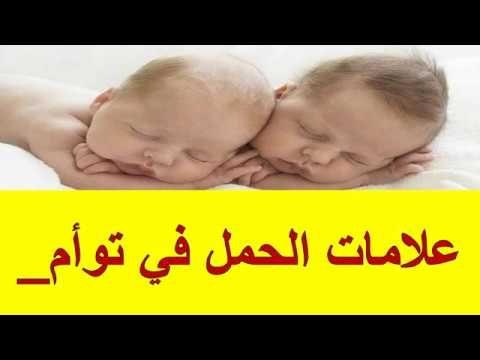 علامات الحمل في توأم علامات الحمل في توأم علامات الحمل في توأم 1 الغثيان في الصباح أحد العلامات المبكرة للحمل في توأم هو الغثيان الص In 2020 Baby Face Face Baby