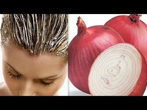 Crazy Grow Recipe Will Be Thanks How Przepisowi Grow Crazy In 2020 Hair Growth Foods Onion Juice For Hair Hair Loss Remedies