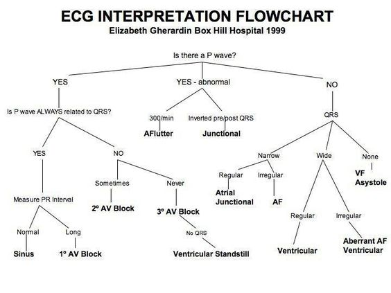 ECG interpretation flow chart: