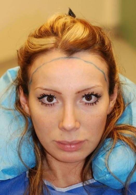 Kurzhaarfrisuren Geheimratsecken Frisur Geheimratsecken Geheimratsecken Frauen Stilvolle Frisuren