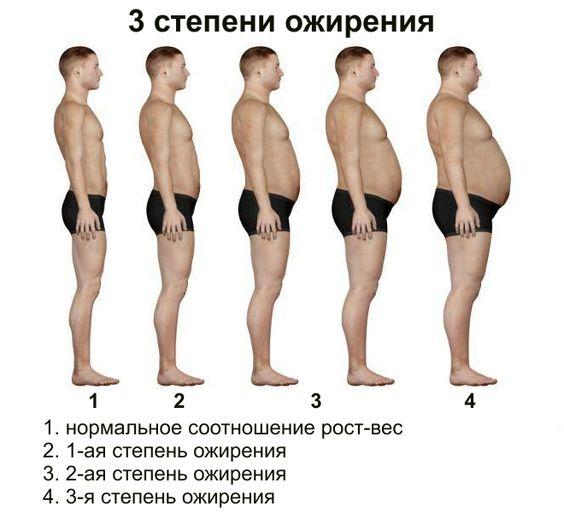 Степини ожирения
