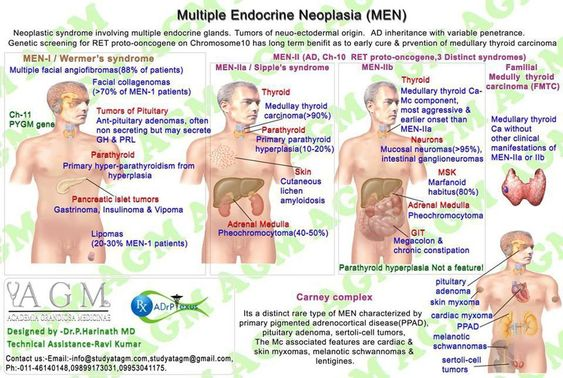 Multiple Endocrine Neoplasia ◬