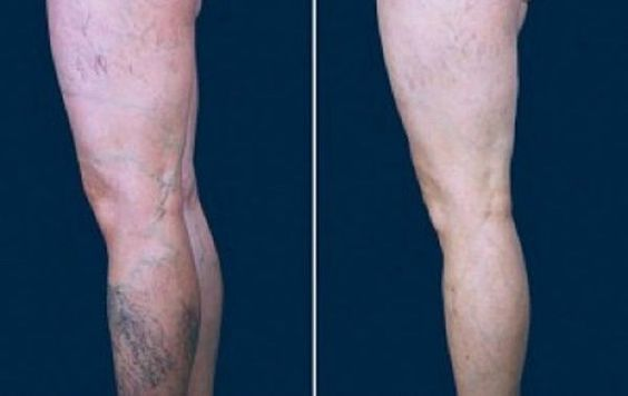 As varizes costumam aparecer nas pernas.  Elas são o resultado da má circulação do sangue, que pode ter como causa uma alimentação ruim e/ou a a falta de atividade física.  As mulheres são as que mais