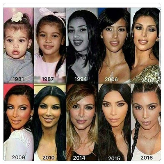 Kim S Looks Changed Dramatically Although She S Admitted To