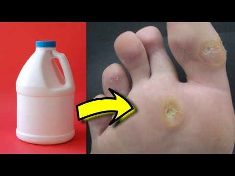 57f40c95824f0fa72b7ddffbba2670e1 - How To Get Rid Of Callus On Toes Permanently