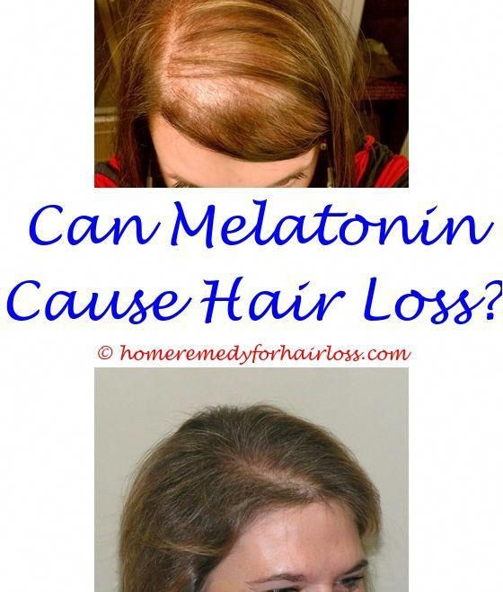 Pin On Thinning Hair No More