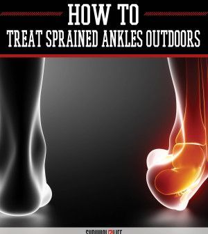 Treating First, Second and Third Degree Ankle Sprains Outdoors | Medical Tips by Survival Life at  http://survivallife.com/2015/07/03/treating-first-second-and-third-degree-ankle-sprains-outdoors/