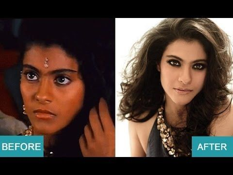 Bollywood Actresses Before And After Cosmetic Surgery Indian Celebrity Skinbleachingunderarm Skin Bleaching Dry Skin Makeup Beyonce Skin