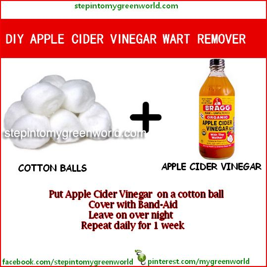 ☛ Have you tried Braggs Apple Cider Vinegar to remove warts?  It is simple, inexpensive and it WORKS!  ✒ Share | Like | Re-pin | Comment