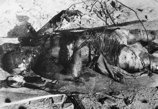 The civilian victim of the A-bomb ( Civilian corpse ) Hiroshima City Official / 原爆被害者一般市民遺体 広島市公式サイト