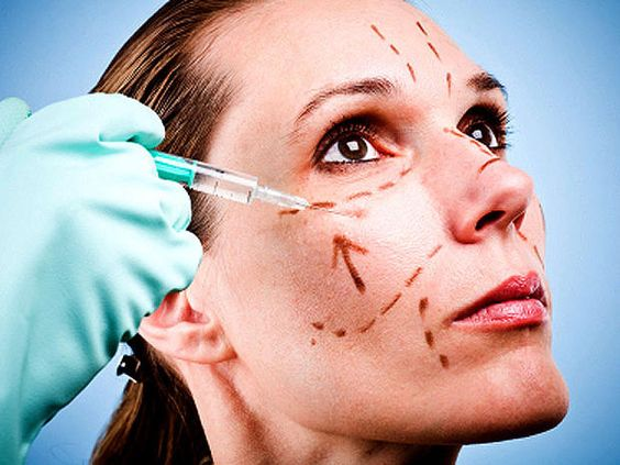 6. Facelift (Rhytidectomy) - 10 most popular plastic surgery procedures - Pictures