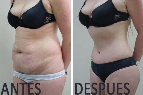 Quemar grasa y adelgazar antes y despues de cirugias
